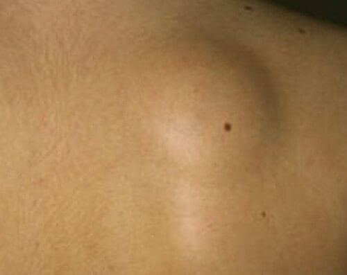 lipoma back photo