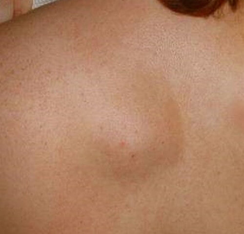 Lipoma - Symptoms, Pictures, Causes, Removal, Surgery
