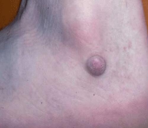 Dermatofibroma image