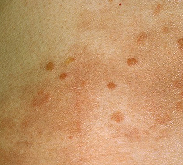 HIV Rash - Symptoms, P...