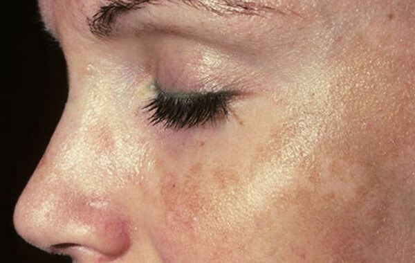 melasma face photos