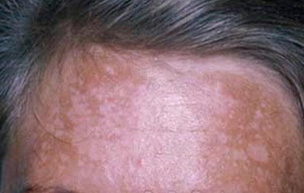 melasma forehead images