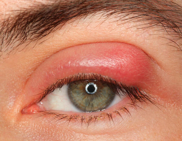 Swollen Eyelid - Causes, Symptoms and Treatment
