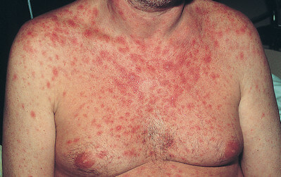 A maculopapular rash seen in a man with severe diarrhea picture