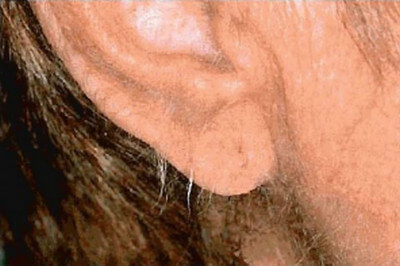 Acquired Generalized Hypertrichosis indicating internal malignancy.