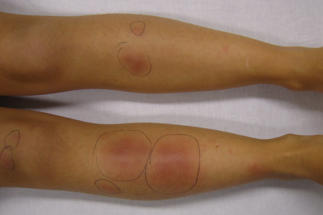 Erythema nodosum in the legs picture