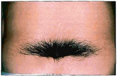 Hypertrichosis over the sacral midline is a sign of spinal dysraphism.