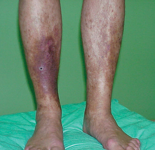 Lipodermatosclerosis due to venous insufficiency image