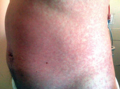 Maculopapular rash in a patient with H1N1 influenza photo