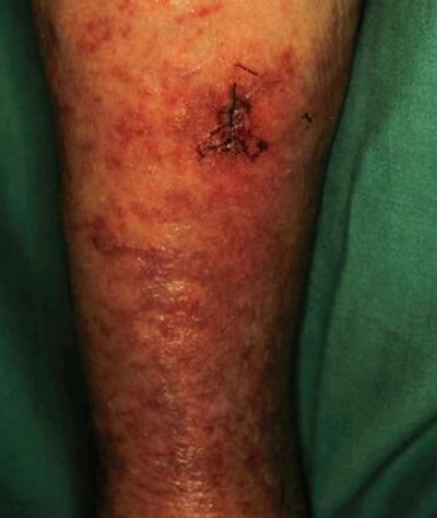 Panniculitis - Definition, Pictures, Symptoms, Causes ...