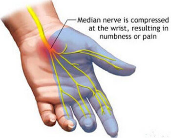 Paresthesia caused by Carpal Tunnel syndrome