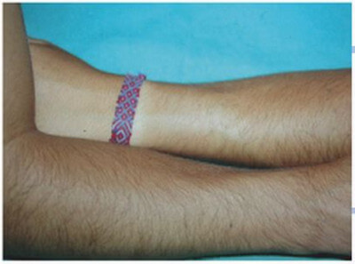This is an example of hypertrichosis acquired when a plastic splint was placed on the forearm for a month.