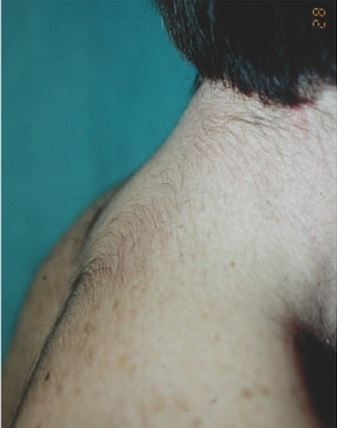 costaleros that have bufaloid neck - hypertrichosis