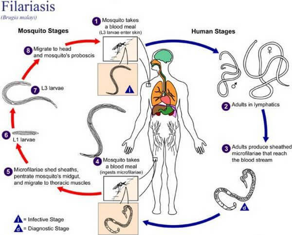 317483 in addition Fascia in addition Suspension Trauma Cause Effects in addition Elephantiasis as well Circulatory System. on how does the human body circulatory system