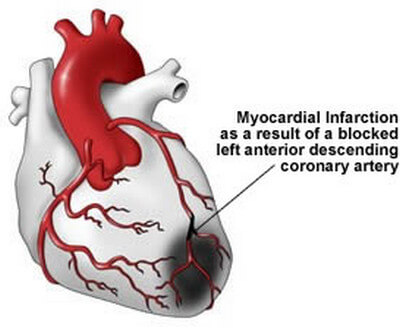 myocardial infarction caused by heart muscle death image