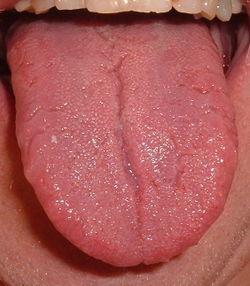 sore taste buds