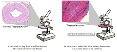 temporal arteritis-biopsy
