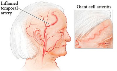 temporal arteritis-inflammed temporal artery