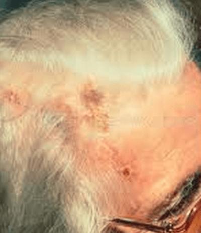 temporal arteritis-scalp necrosis