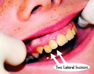 Supplemental Supernumerary Tooth image