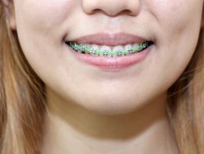 braces picture