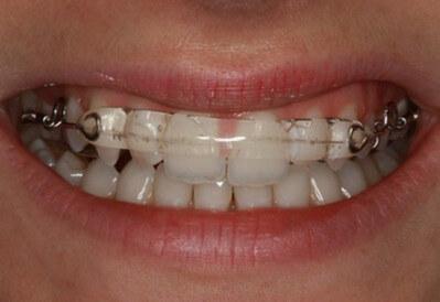 teeth aligner image