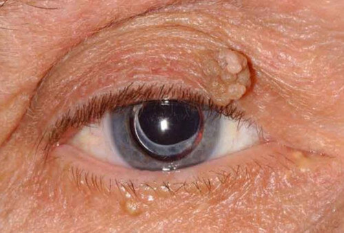 White Bump on the Eyelid - Causes and Treatment - (2019