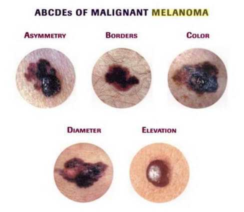 ABCDE rule of malignant Melanoma