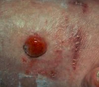 Pictures of Melanoma - Healthline