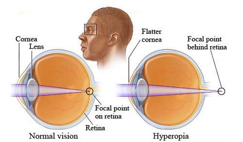Normal vision vs Hyperopia