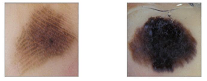 PRP, PFP or fibrillary pattern Acral lentiginous melanoma