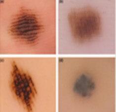 Acral Lentiginous Melanoma - Pictures, Symptoms, Causes