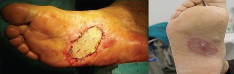 Split-thickness skin graph melanoma