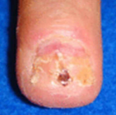 Subungual melanoma photo nail
