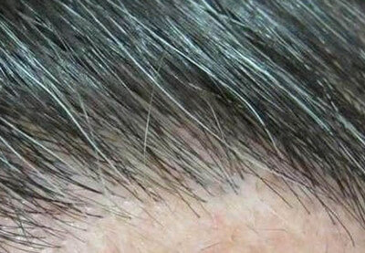 THC in hair