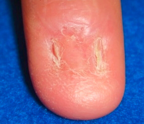 finger after the aforementioned nail lesion removal subungual melanoma and skin graft placement