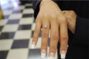 dermal-piercing-finger-ring