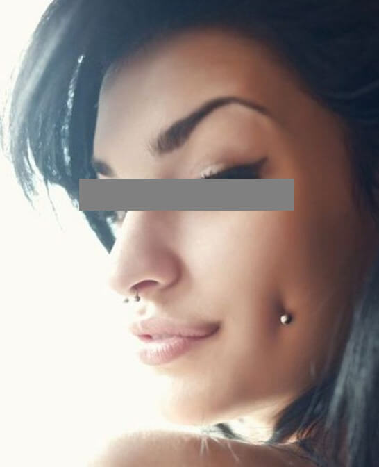 Dermal piercing - Pictures, Removal, Infected Pain ...