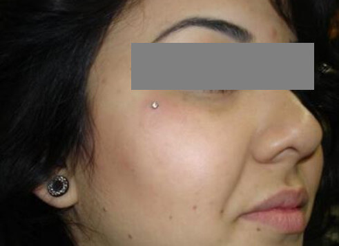 Dermal Piercing Pictures Removal Infected Pain Procedure After