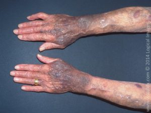 ecchymoses due to steroid-induced purpura