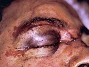 periorbital ecchymosis due to trauma
