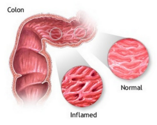Inflamed Colon  Symptoms, Causes And Treatment  (2018. Leprosy Signs Of Stroke. Left Side Signs. Apple Signs Of Stroke. Lip Signs Of Stroke. Agenda Signs Of Stroke. Takeaway Signs Of Stroke. Pancreas Signs. Notice Signs