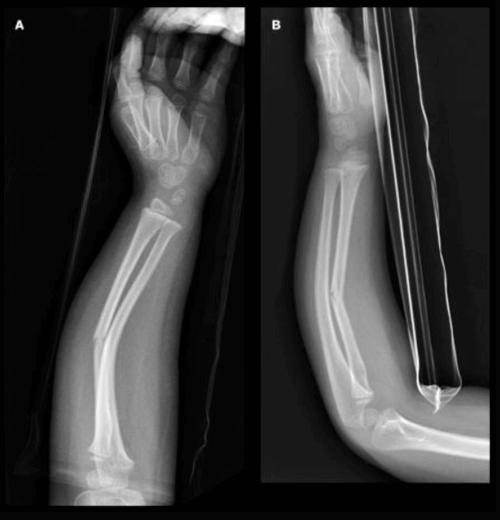 Greenstick Fracture Of Wrist