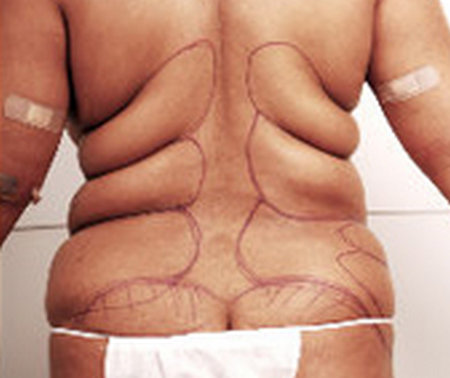a person who has a lot of love handles, being assessed and prepared for lipolysis treatment.image