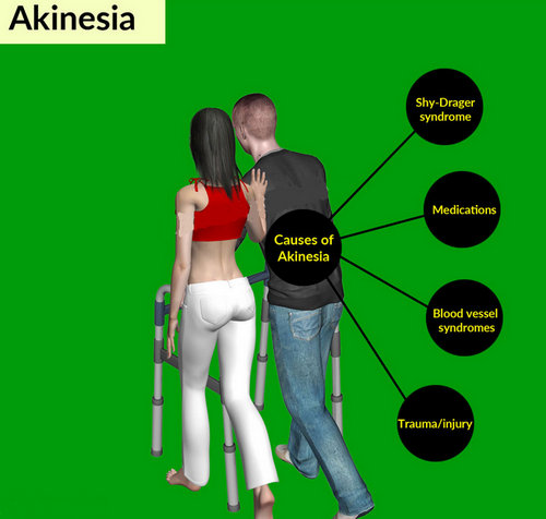 A patient with akinesia being taken care of by a significant other. It also outlines the possible causes of akinesia.photo