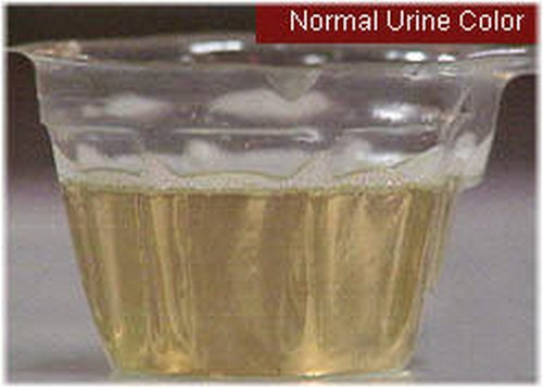 A normal colored urine.photo