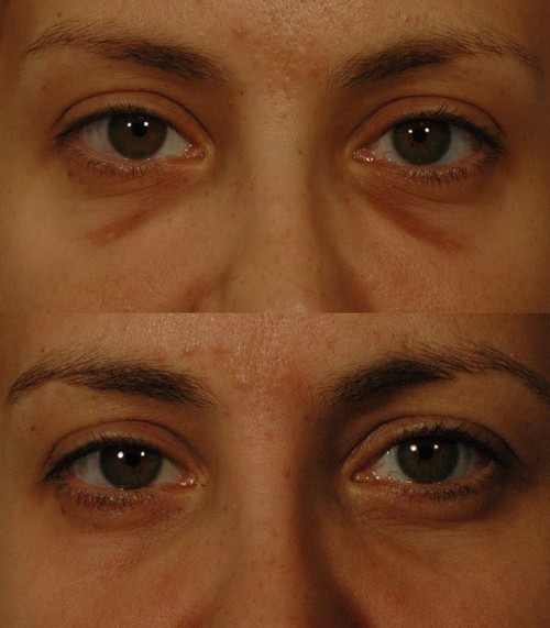 A before and after image of patient with hemosiderin stain under the eyes.photo