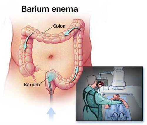 Barium enema, one of the procedures used to detect obstipation.image